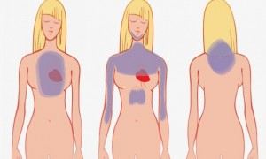 Πως να αναγνωρίσετε μια καρδιακή προσβολή έναν μήνα πριν συμβεί