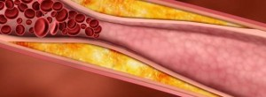 Kαρδιοχειρουργός μιλάει για την απάτη της χοληστερίνης…