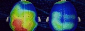Νευροεπιστήμονες ανακάλυψαν ένα τραγούδι που μειώνει το άγχος κατά 65% (Ακούστε)