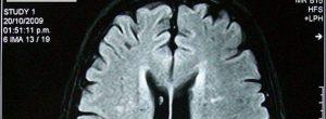 Όσοι ξεχνούν εύκολα είναι σημάδι ανώτερης νοημοσύνης σύμφωνα με τους επιστήμονες
